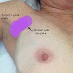 Fibrocystic breast disease lymph nodes